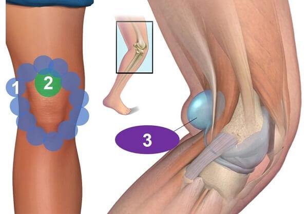 Chấn thương dây chằng cổ chân và cách xử lý