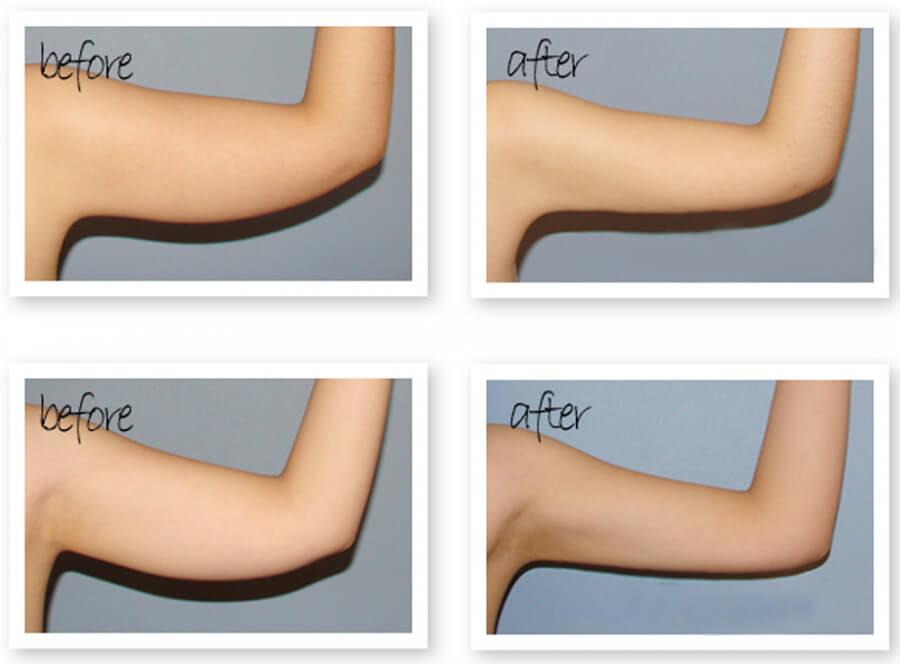 Cách giảm mỡ dưới cánh tay giúp cải thiện vóc dáng